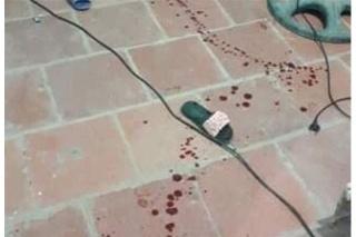 Vụ bé gái 11 tuổi bị chém trọng thương ở Thanh Hóa: Nghi can từng hành hung mẹ nạn nhân